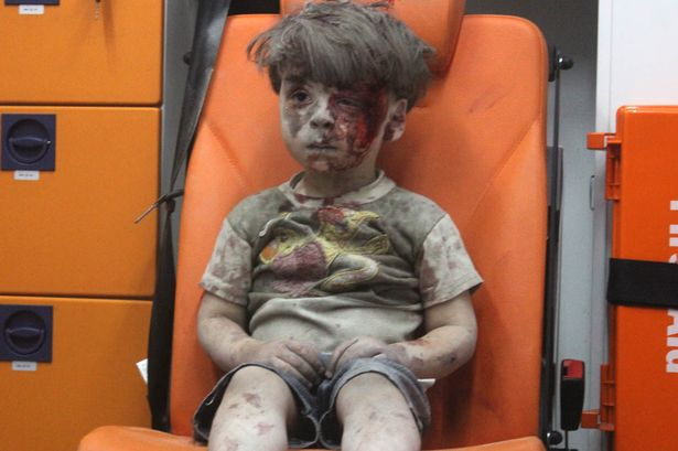 5-year-old-wounded-Syrian-kid-Omran-Daqneesh-sits-alone